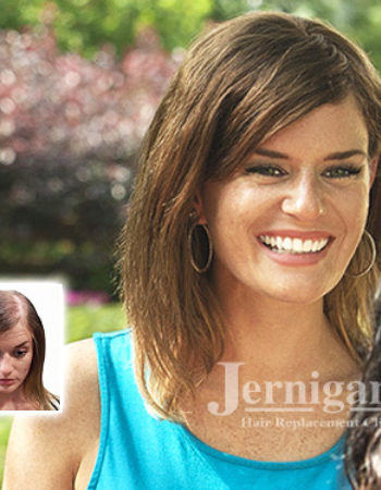 Jernigan's Hair Replacement Clinic