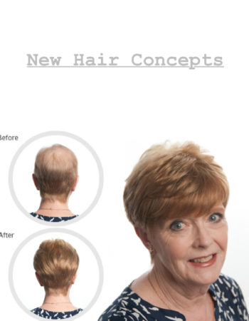New Hair Concepts of Northern New Jersey