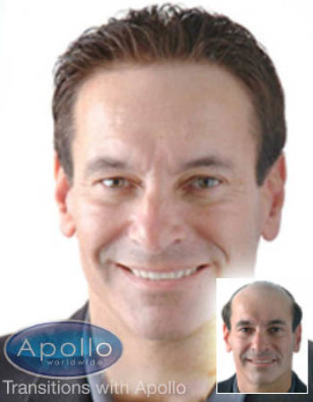 Transitions with Apollo Worldwide